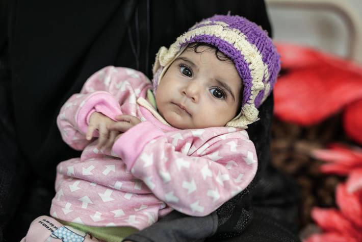 Acute malnutrition threatens half of children under five in Yemen in 2021